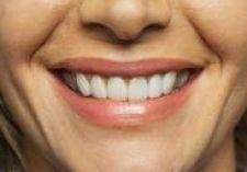 Як вибрати імпланти для зубів
