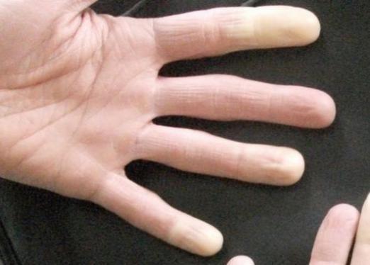 Онімів палець: що робити?