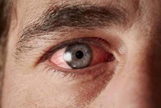 Ретинопатія сітківки при діабеті - симптоми і методи лікування