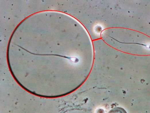 Скільки живе сперматозоїд?